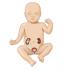 Çocuklarda böbrek genişlemesi ve ultrasonun değeri
